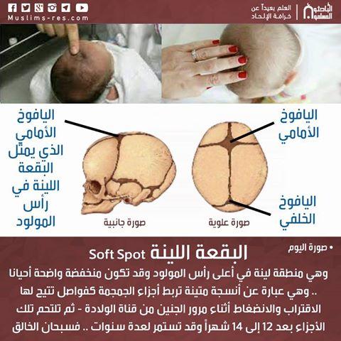 البقعة اللينة Soft Spot