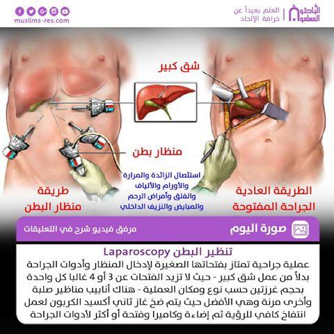 تنظير البطن Laparoscopy