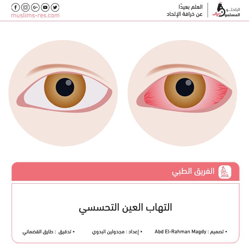 allergic eye V
